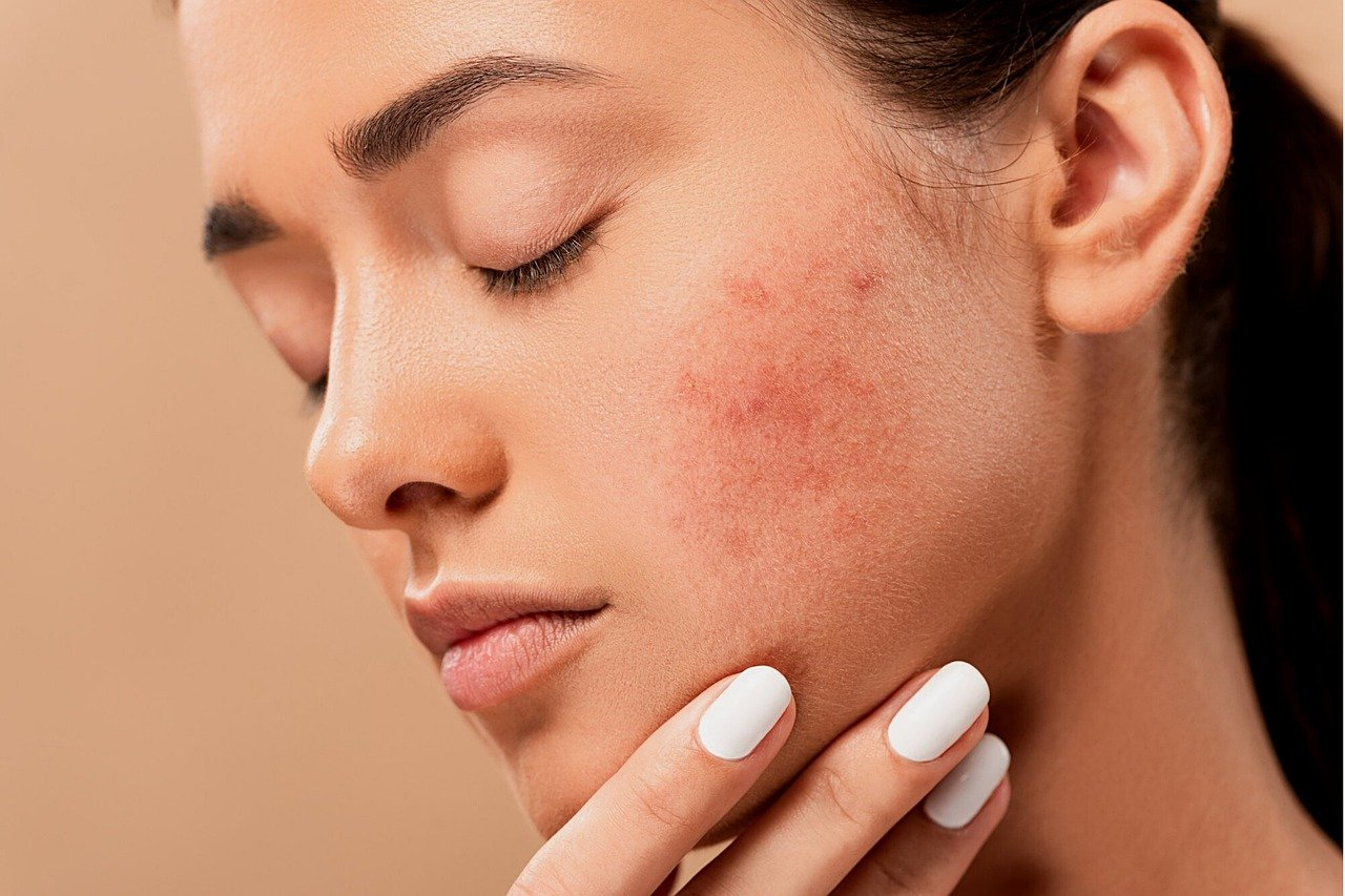 How Deep Is Your Skin Pigment | Dermal Pigmentation
